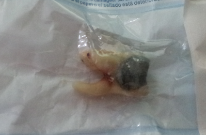 Molar Tooth with filling